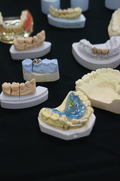 入れ歯や義歯の展示