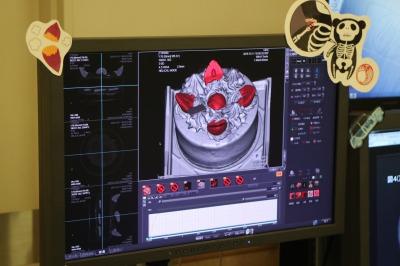 CTスキャンで見ると…