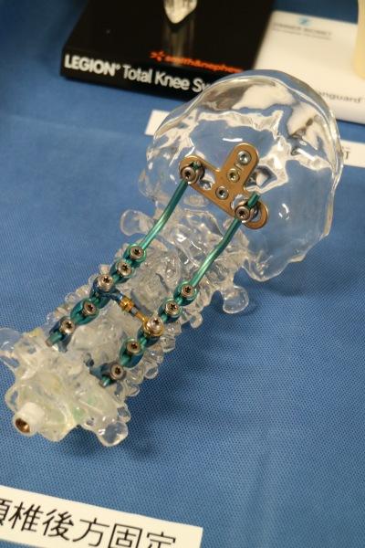 脊椎の固定手術
